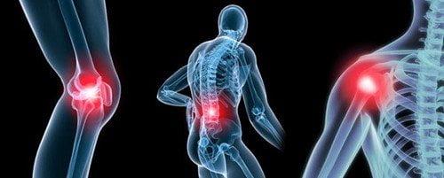 Có nhiều nguyên nhân dẫn đến đau xương khớp