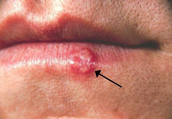 Hickey có thể gây herpes miệng | Hickey có thể gây herpes miệng