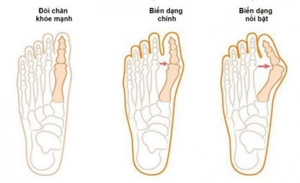 các giai đoạn biến dạng ngón chân cái | các giai đoạn biến dạng ngón chân cái