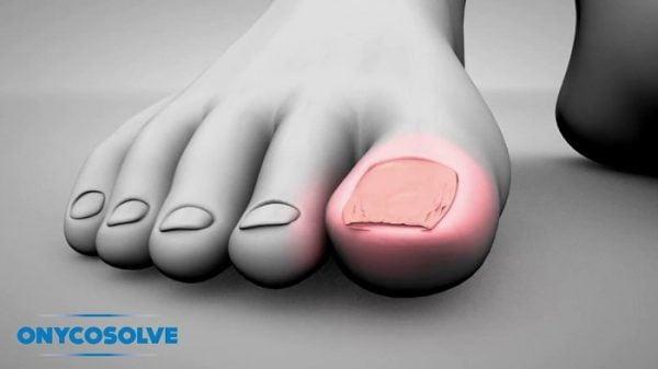 OnycoSolve đẩy lùi nấm chân