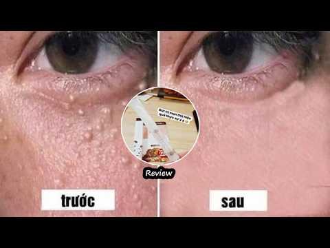Kem Trị Mụn Thịt Tsubuporon 1.8ml 1