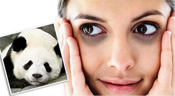 Thâm quầng mắt khiến bạn mất tự tin hãy tham khảo 13 cách trị thâm quầng mắt từ tự nhiên | Thâm quầng mắt khiến bạn mất tự tin hãy tham khảo 13 cách trị thâm quầng mắt từ tự nhiên